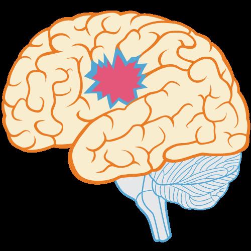 Brain Myth: Brain damage is always permanent - BrainHQ from